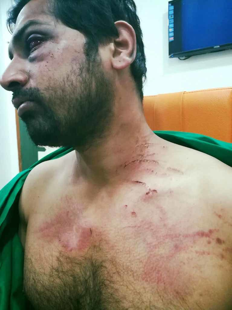 An orthopedic senior resident doctor - Rohan Mhamunkar (35) - at the Dhule Government Hospital was ruthlessly beaten on March 12, 2017.