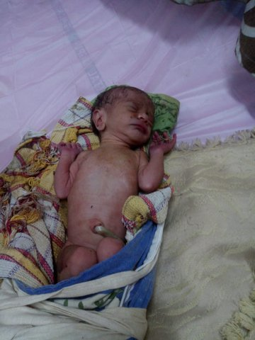 In a horrific incident, a newborn baby girl was found abandoned under a parked car at Manish Nagar's Gharkul Housing Society in Nagpur on Sunday morning.